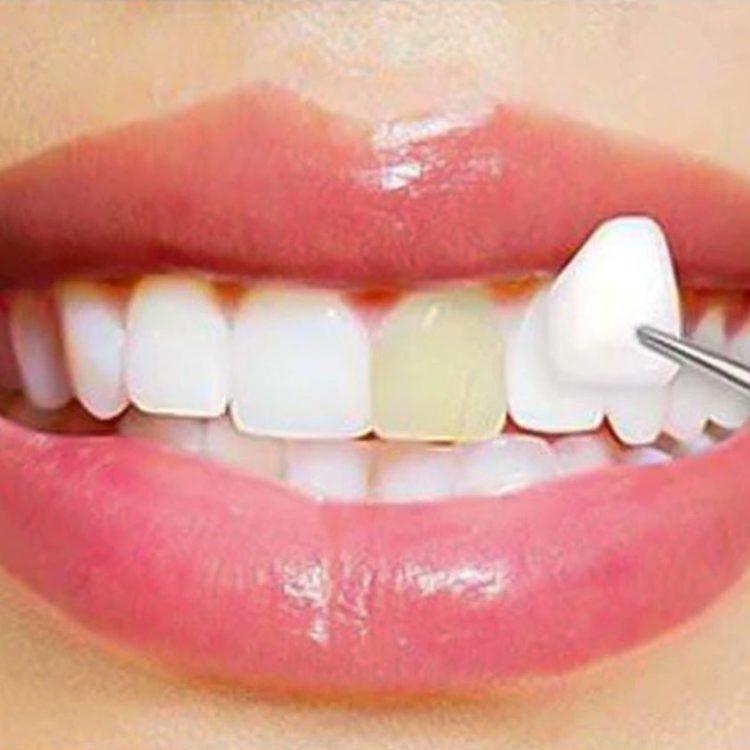 A porcelán héjjal történő foghéj pótlás az elszíneződött és enyhén sérült fogak pótlásának illetve helyreállításának egyik legjobb eszköze