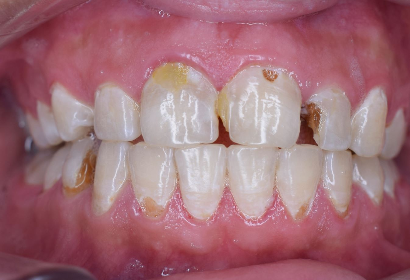 férgek a fogszuvasodás oka
