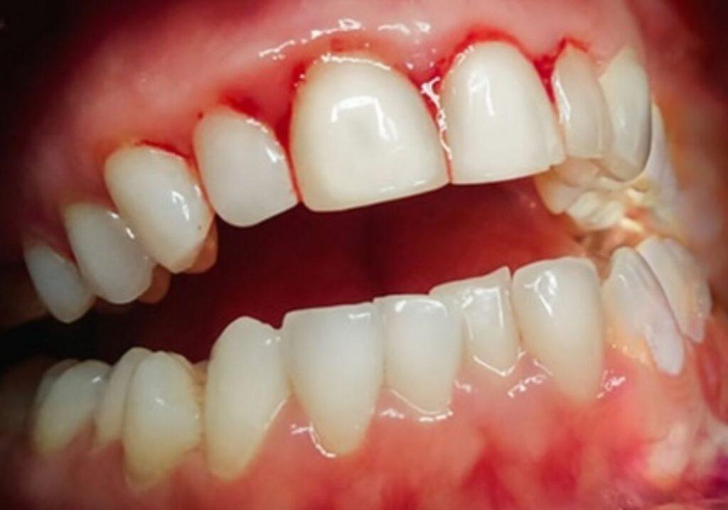 A fogínyvérzés okai és kezelése